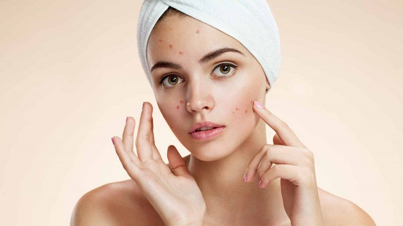 acne-natural-facial-masks-diy-problem-skin
