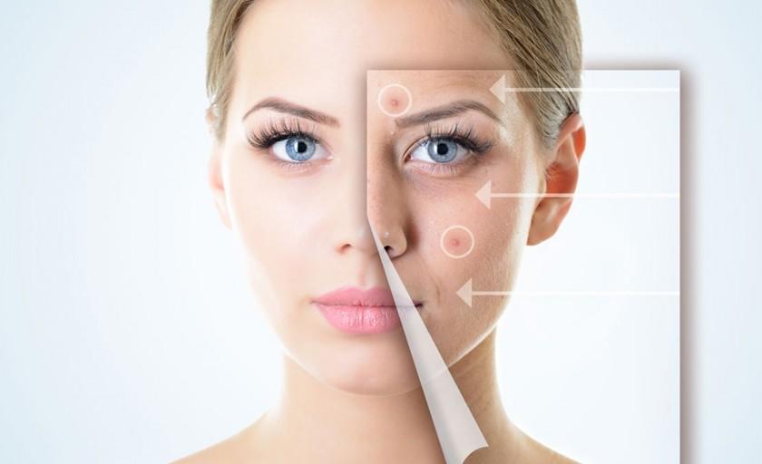 S.O.S Acnee: Ce este acneea?
