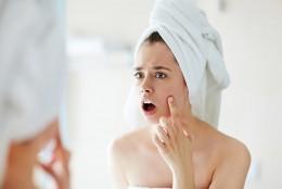 S.O.S Acnee: cauzele aparitiei acneei