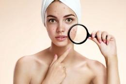 S.O.S Acnee: cum identifici ce tip de acnee ai